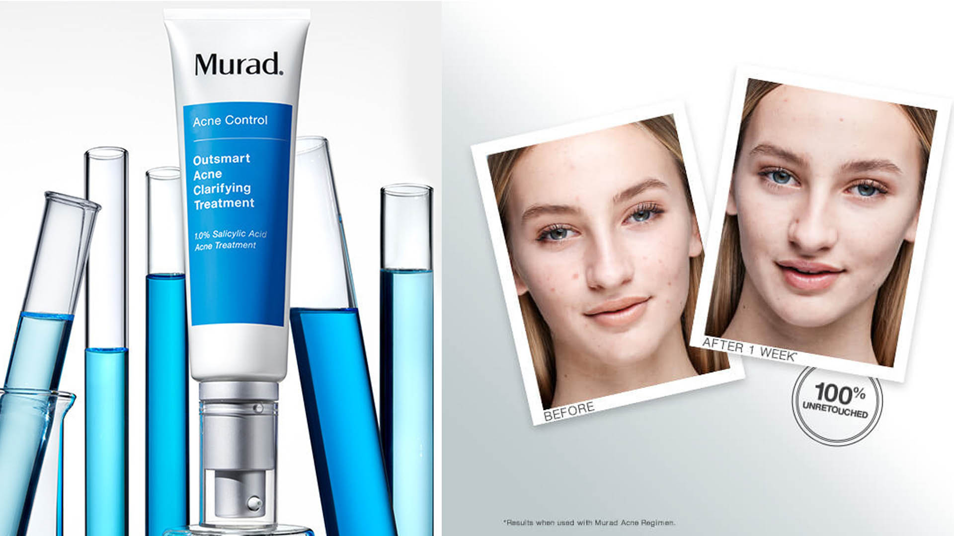Outsmart Acne Clarifying Treatment Is One Of 4 Life Changing Skin Care Products
